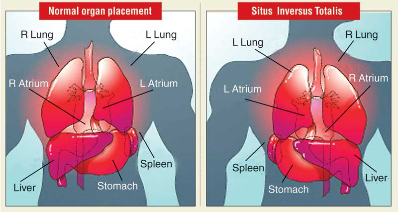 Alignment of organs in case of Situs Inversus.